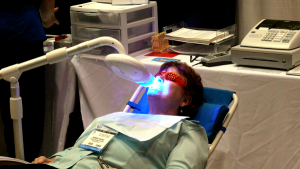 Teeth Whitening by Welcome Bay Dental Care