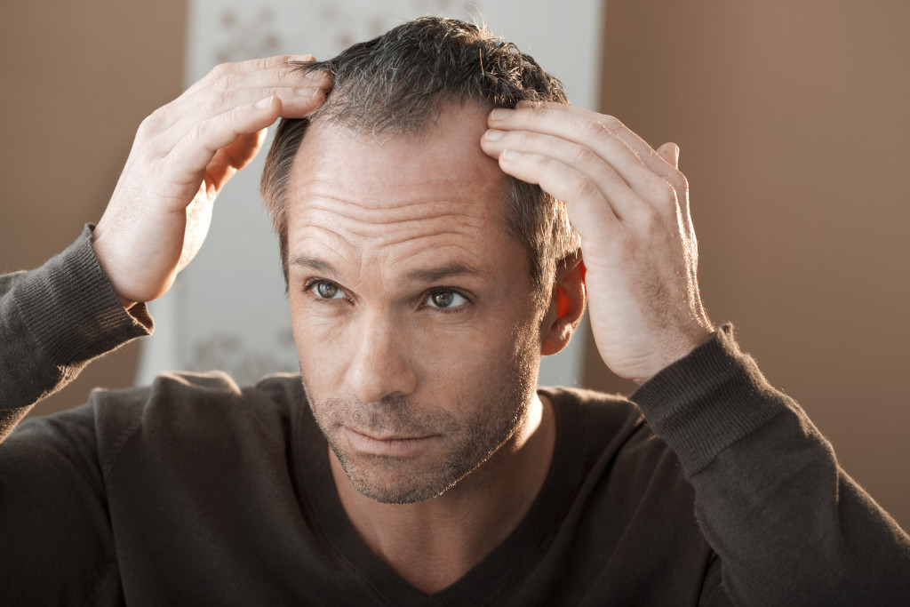 Hair Loss Cases in New Jersey