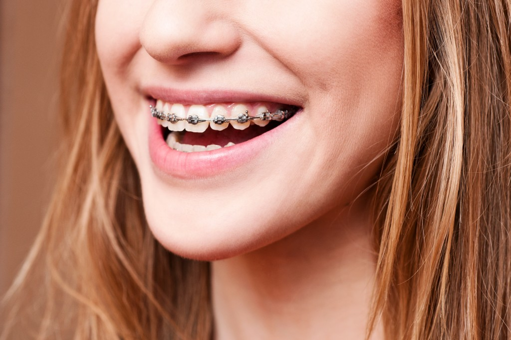 Improve Oral Health and Appearance with the Right Orthodontic Braces