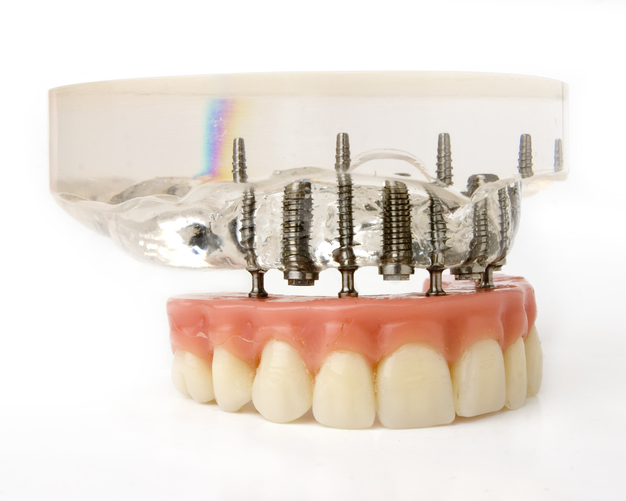 Dental Implant Maintenance: What You and Your Dentist Can Do