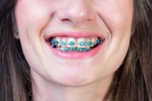 Colours of Braces