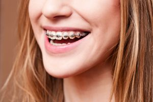 4 Reasons You Could Be Better Off with Traditional Braces than Invisalign