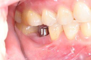 Dental Implantology in UK