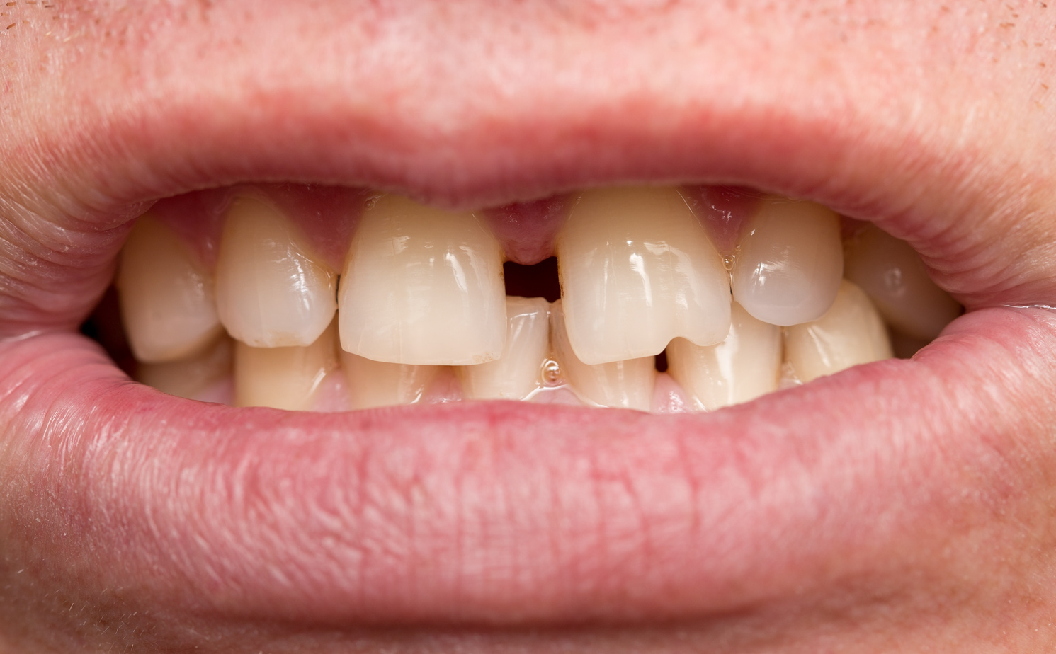 Grinding Your Teeth in Your Sleep May Lead to Crooked Teeth