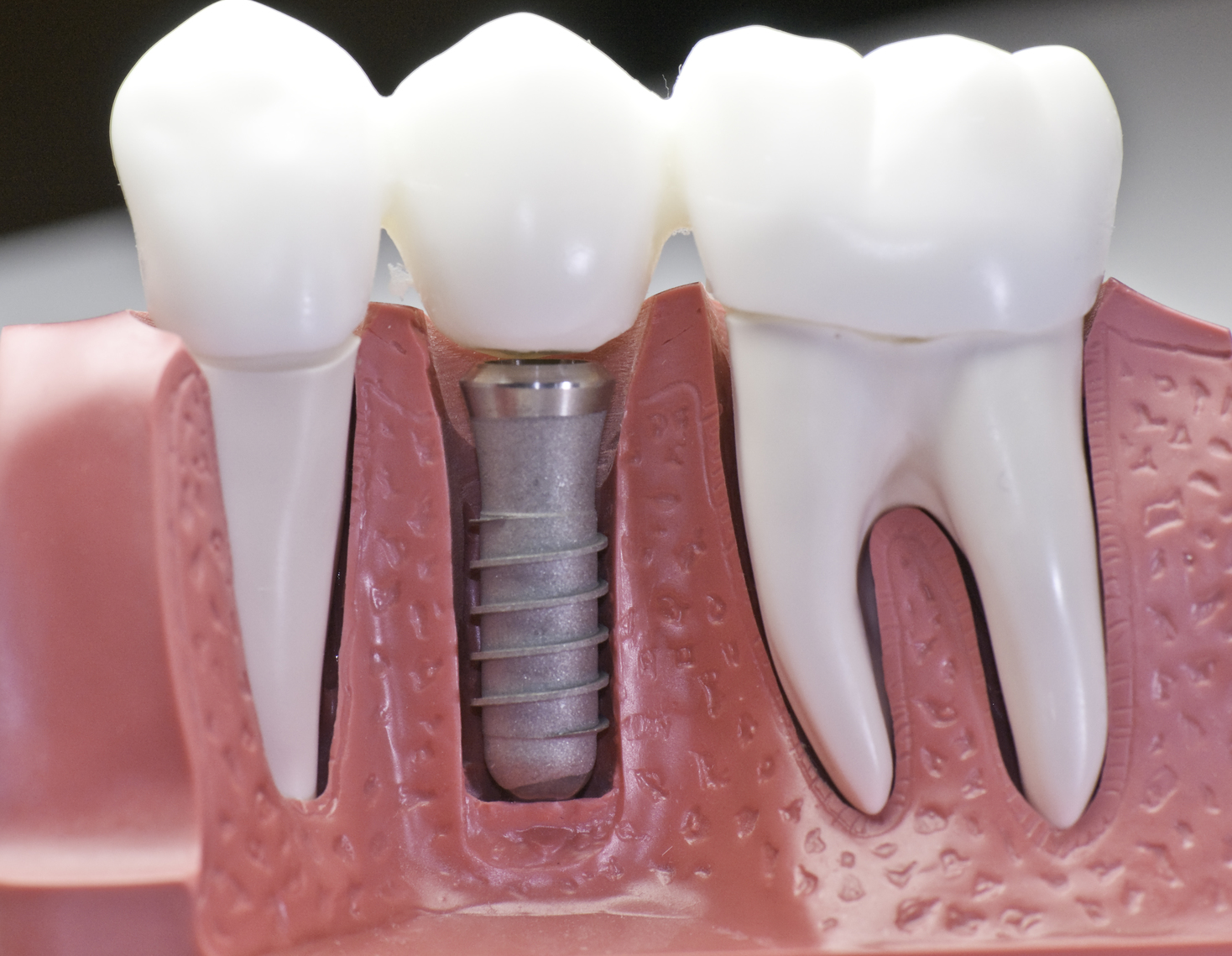 Dental Implants: 3 Myths Debunked