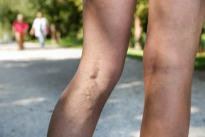Woman with Venous Disease