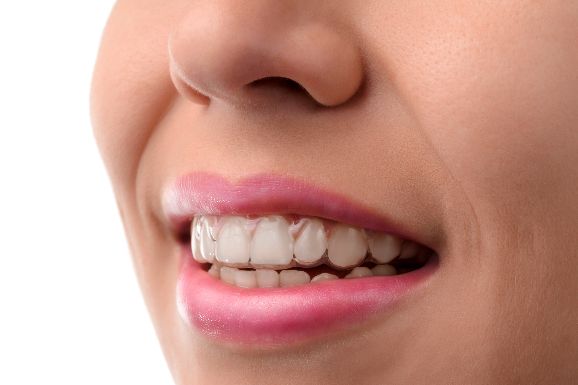 Four Things You should Know before Trying Out Invisible Braces