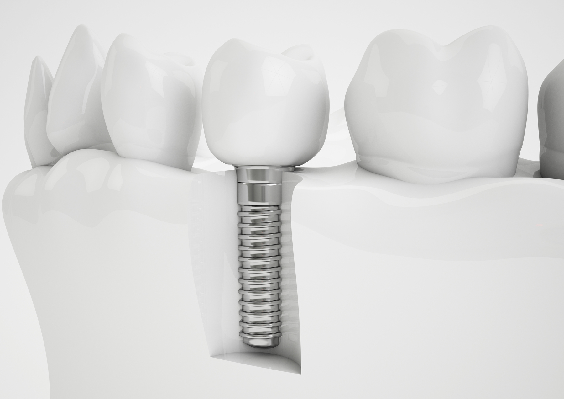 Your guide to the numbers in the dental implant process
