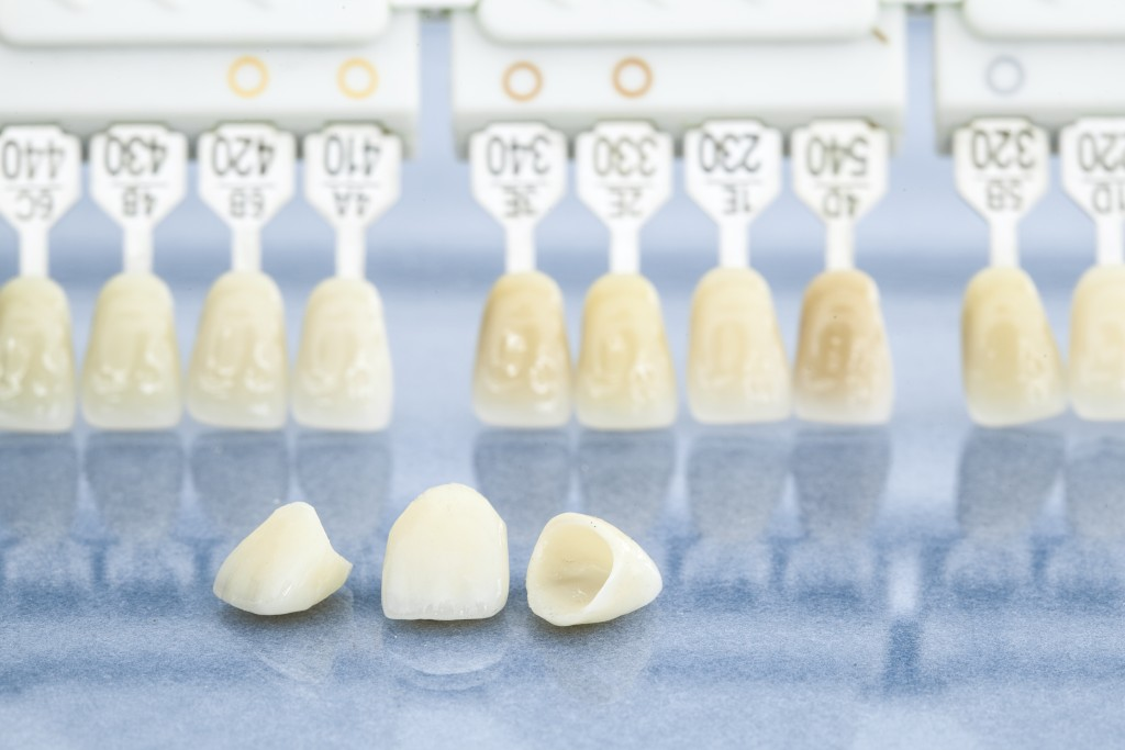 3 Golden Rules to Prolong the Life of Your Porcelain Veneers