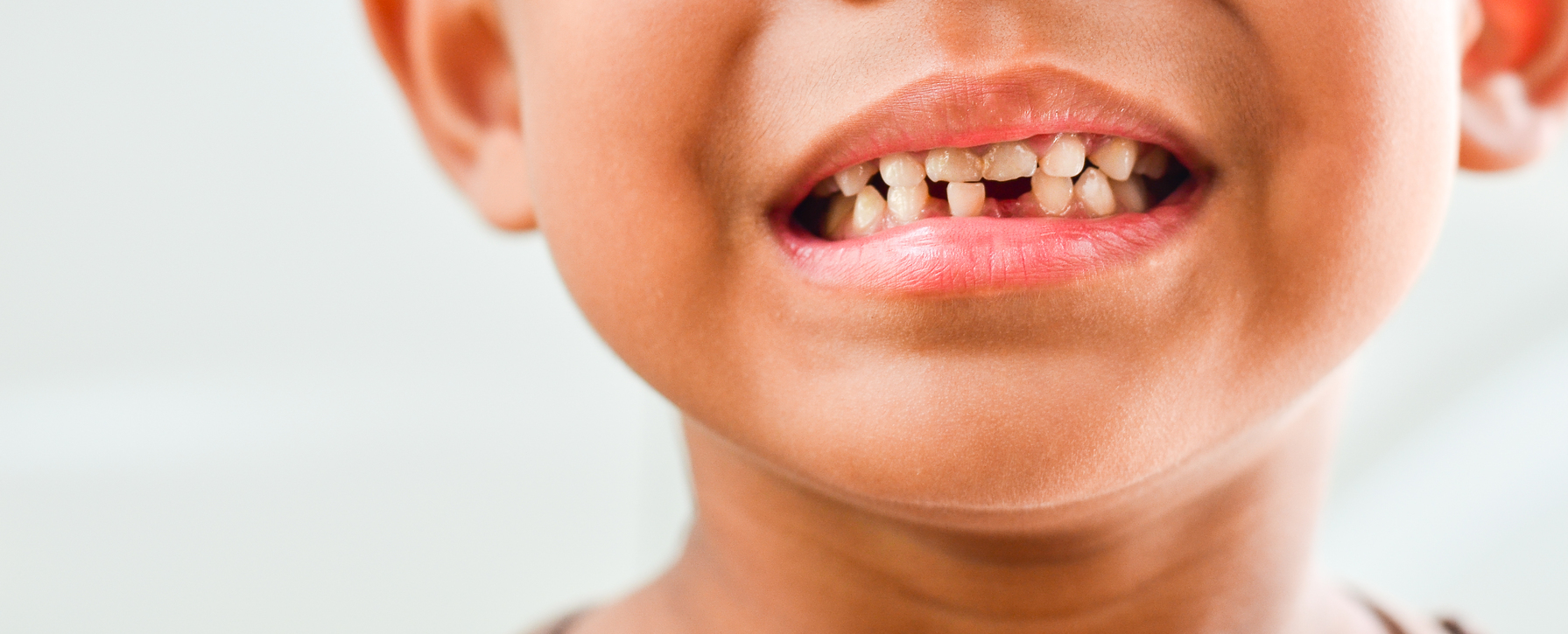 You and Your Chipped Tooth: The Big Deal You Should Mind