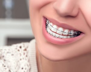 Woman with Dental Braces