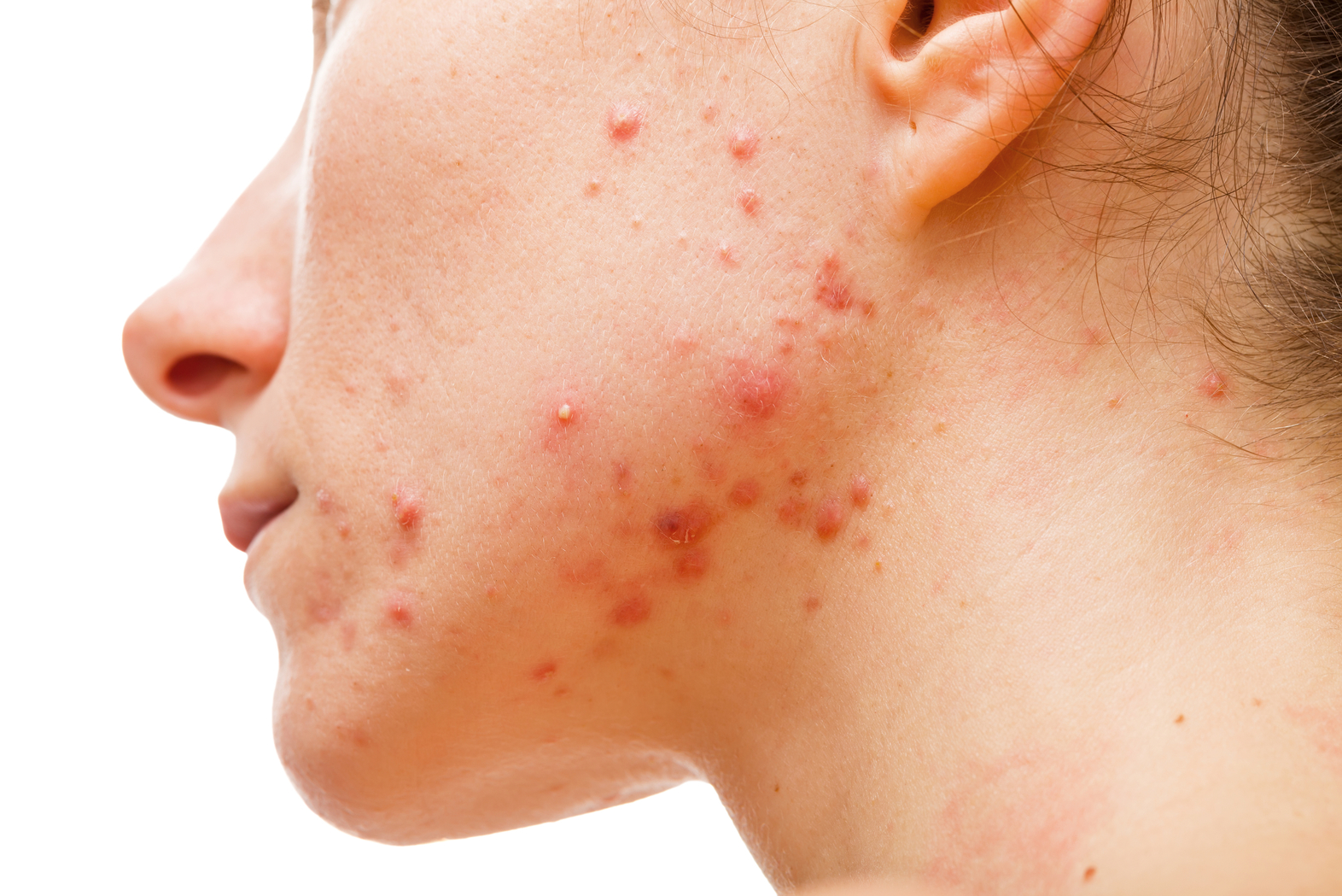Hard Water on Your Skin: Does It Trigger Acne?