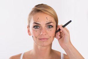 Woman having her facelift procedure