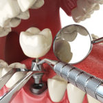 Concept of dental implant
