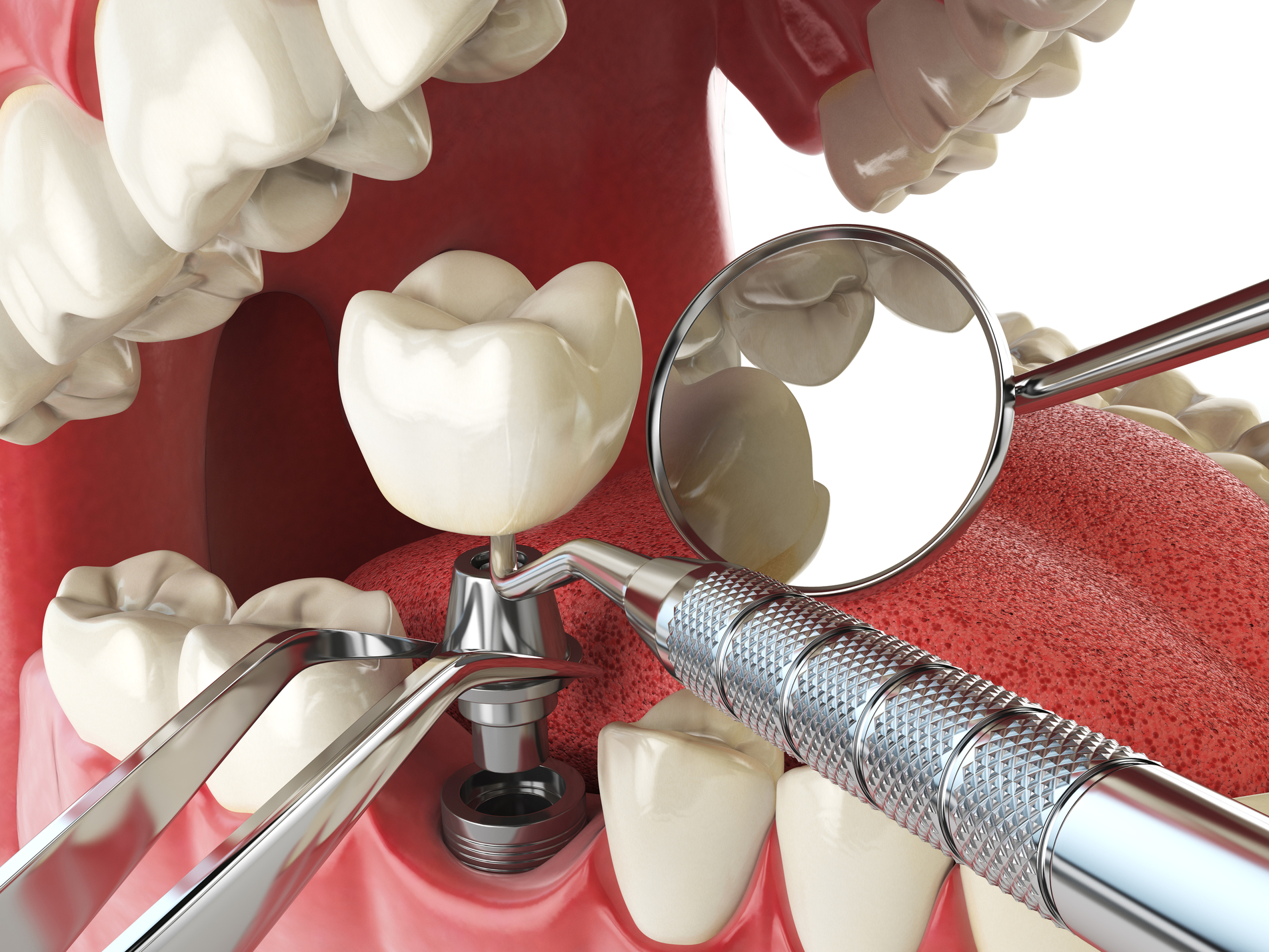 Dental implants in Harley Street: A Permanent Treatment for Tooth Loss