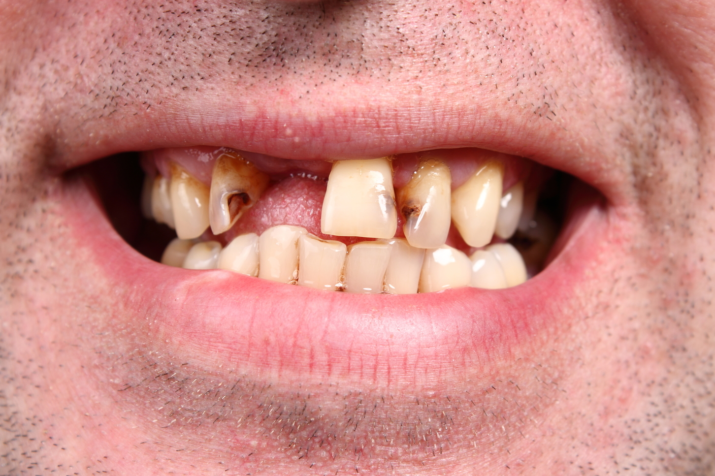 You Can Prevent Gum Disease with These 3 Habits