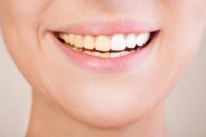 Woman Showing Teeth