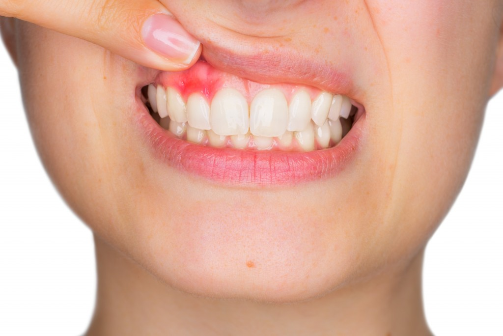 Periodontal Disease: What are Your Options When You Opt For Non-Surgical Treatment?