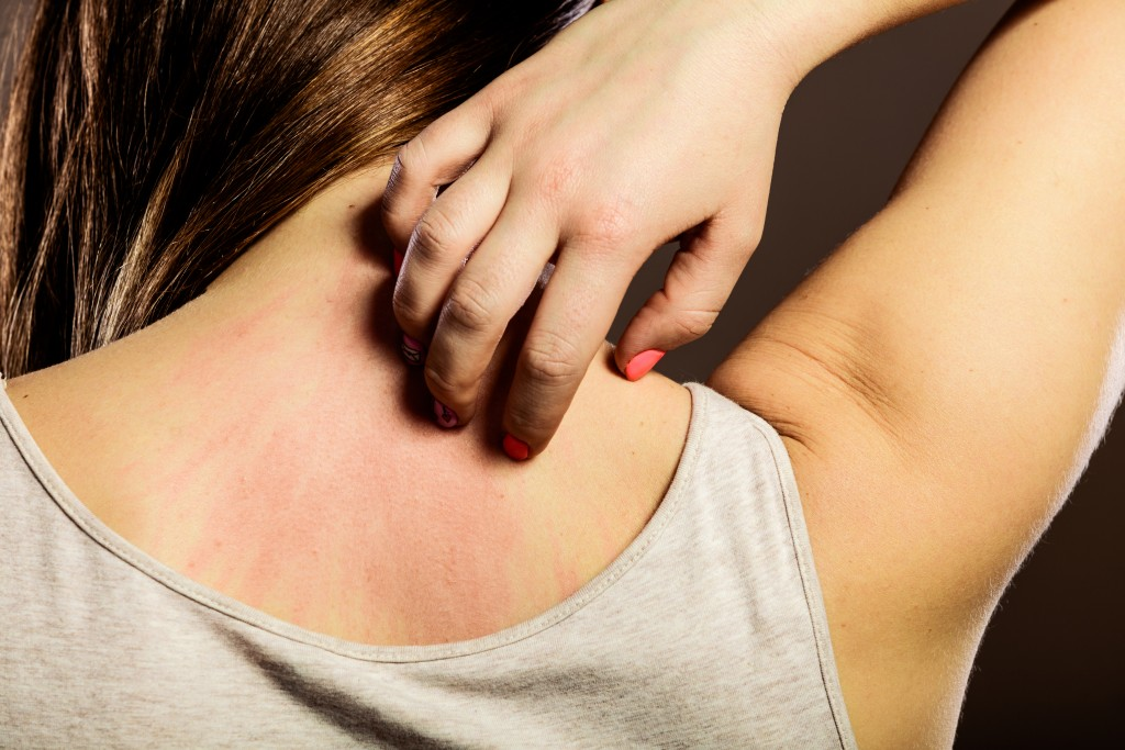Skin Rash: Does it Signal Something More Serious?