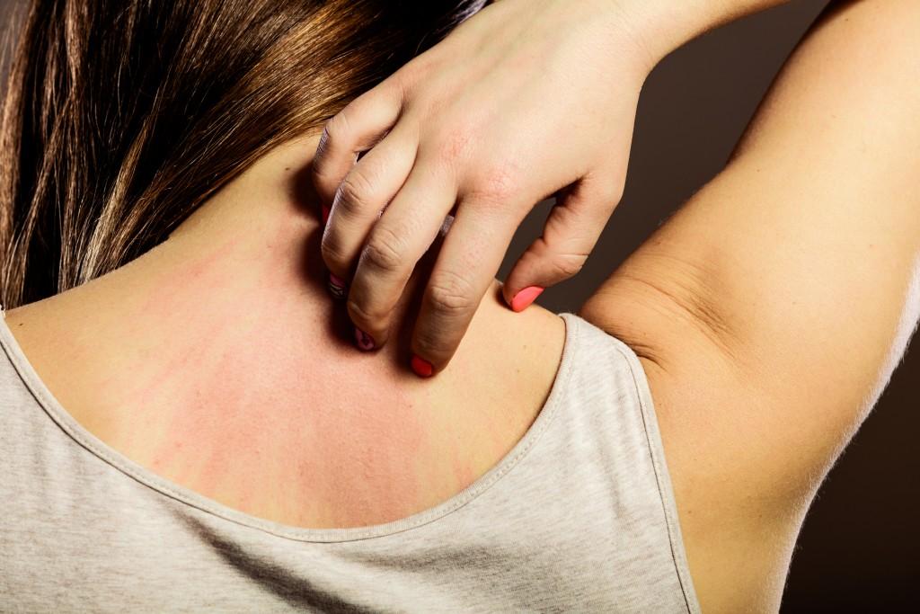 Types of Skin Rashes