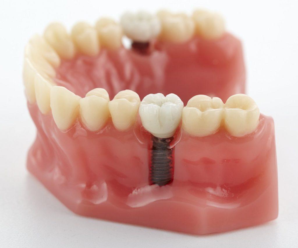 Closeup photo of a dental implant