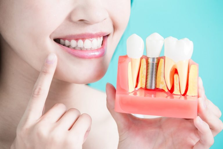 Patient holding a dental implant model