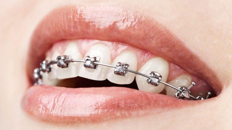 Dental Braces: Are Straight Teeth Everything?