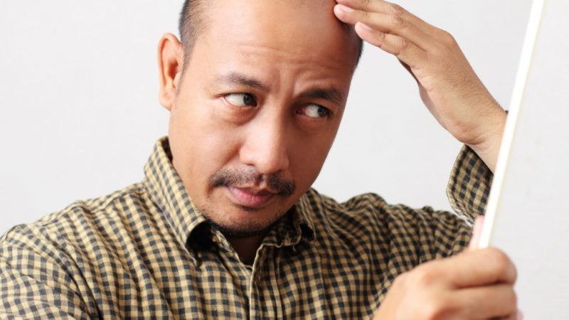Scalp Pigmentation vs. Hair Transplants: Which One Is Better?