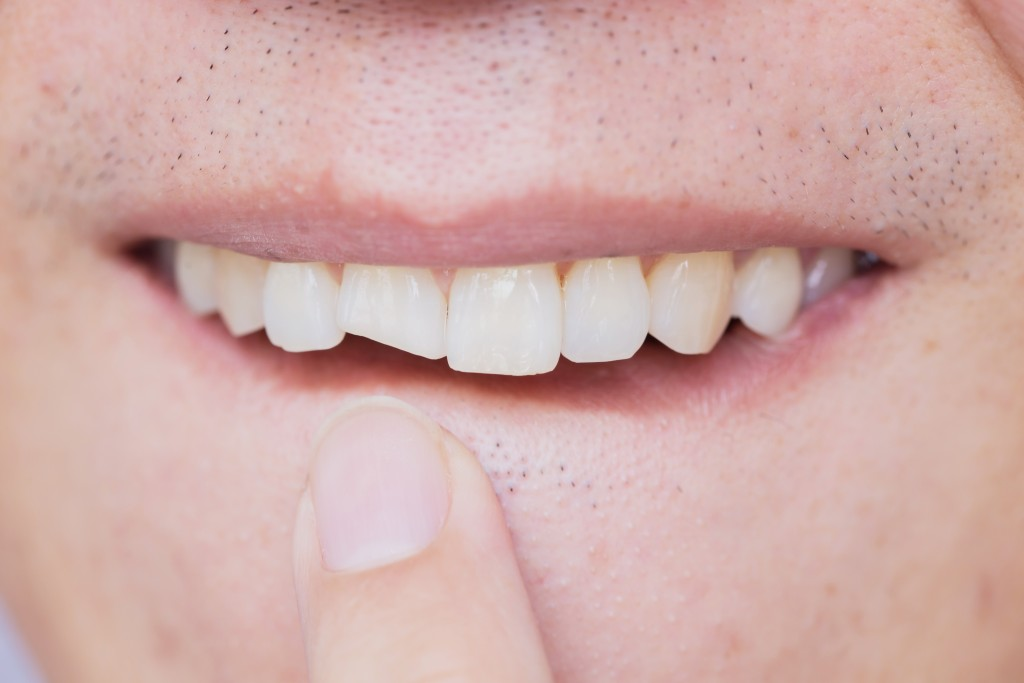 The Truth about the Tooth: What's the Big Deal about Chipped Tooth?