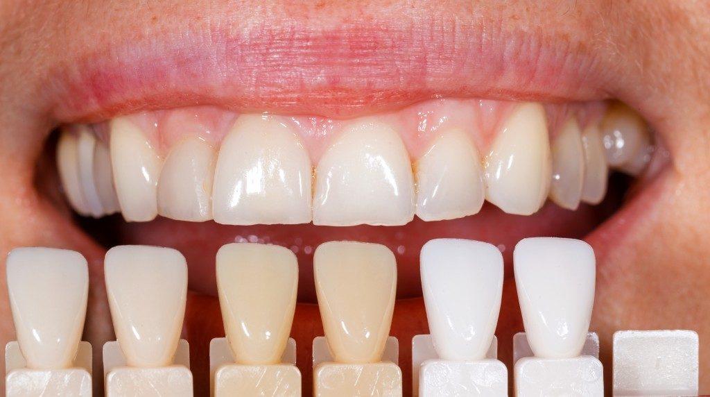 comparing teeth discoloration