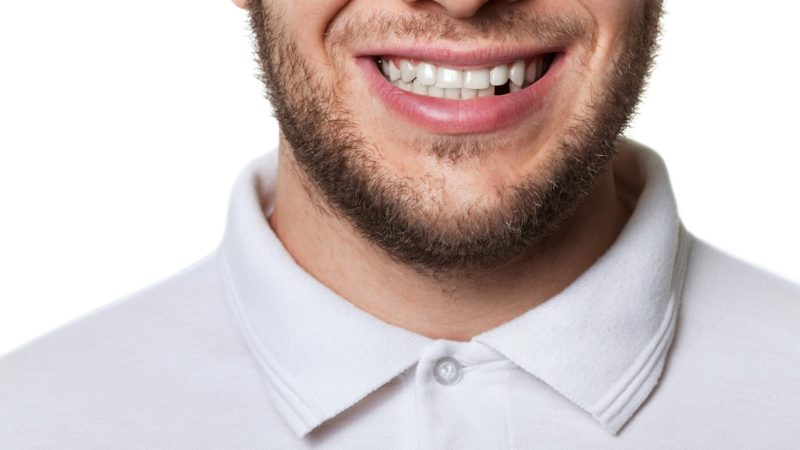 A solution for missing teeth
