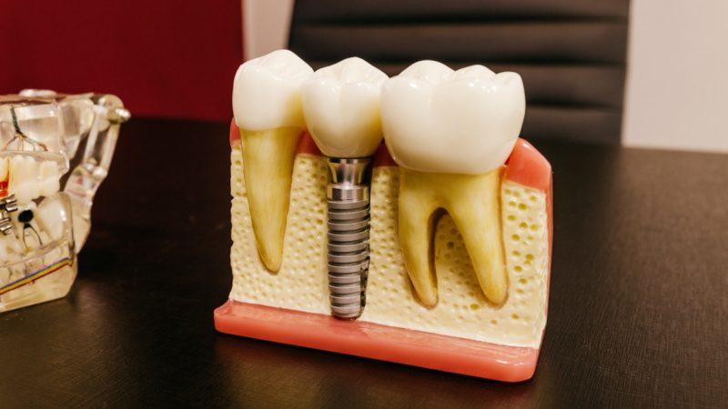 Reasons for needing dental implants in Clapham